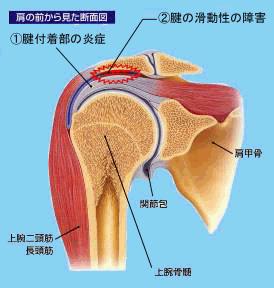 肩関節周囲炎のイラスト