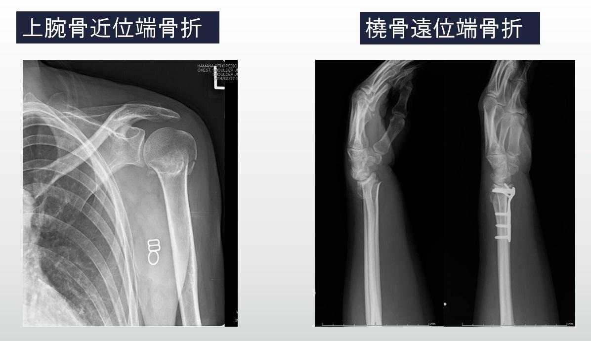 上肢の骨折