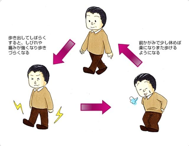 腰痛 図5