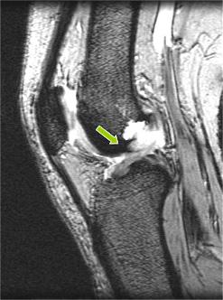 画像:前十字靭帯断裂像